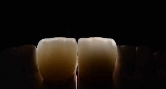 ¿Qué sucede cuando existen ausencias dentales?