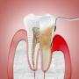 La periodontitis multiplica el riesgo de mortalidad en un enfermo de coronavirus